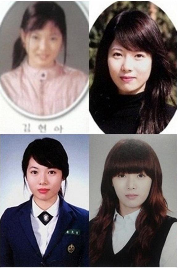 Foto park shin hye sebelum operasi 88